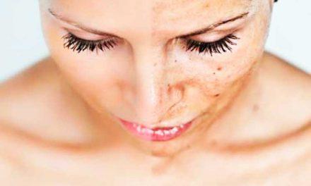 Как убрать с лица пигментные пятна?